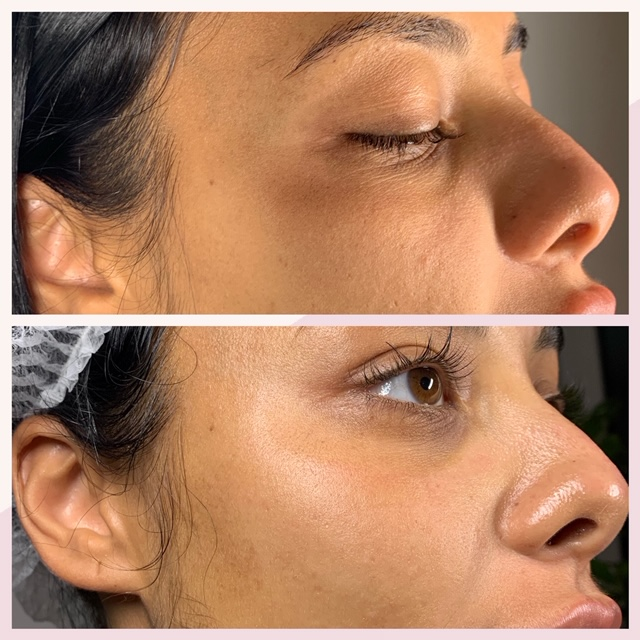 Microneedling straight after treatment-improved skin texture