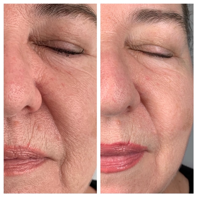 Microneedling straight after treatment- reductions of lines and improved skin texture