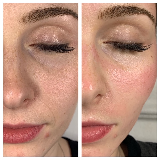 Microneedling straight after treatment-removal of smile line
