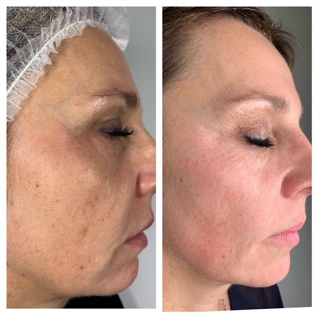 Microneedling straight after treatment-removal of age spots